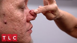 This Man's Bumps on His Nose are Becoming a Burden   Dr. Pimple Popper