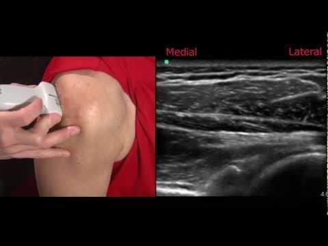 Ultrasound of the Shoulder