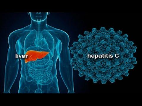 Передовые клиники лечения гепатита с