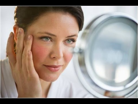 El síndrome bulbar osteocondrosis