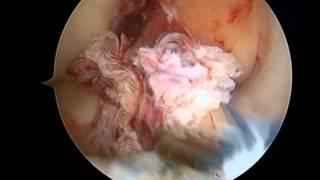 GNOSTIKA  Operacion ligamento cruzado anterior, cirugia por artroscopia por el Dr Carlos Leal - Gnostika Imágenes Diagnósticas