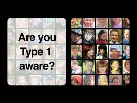EyeDrops diabetischen Katarakt