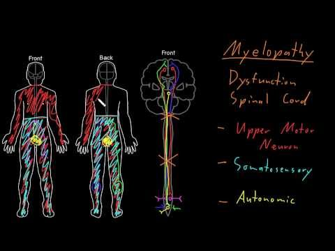 Quale dottore tratta osteochondrosis di dita del piede
