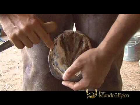100 medio del hongo de las uñas en los pies