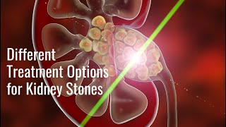 Different Treatment Options for Kidney Stones - Dr. Samuel Lawindy