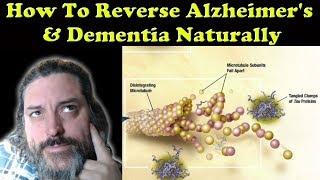 How To Reverse Alzheimer's & Dementia Naturally