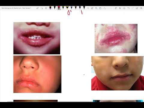 Come guarire medicine di eczema