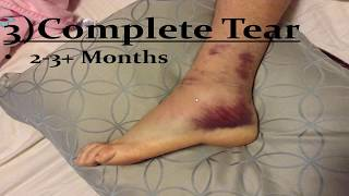 Sprained Ankle Ligaments  *Home Treatment Guide!*
