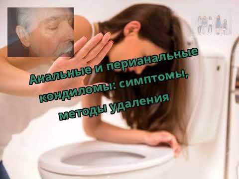 Анальные и перианальные кондиломы: симптомы, методы удаления