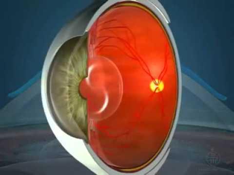 Глазного давления ребенка