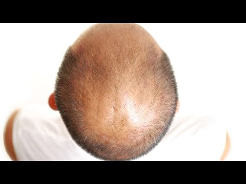 The Hair Loss DHT Myth: Baldness Cure Debunked Mp3