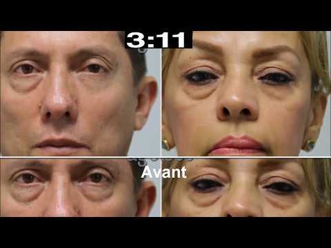 Les masques pour la personne avec la vitamine в1 et в6