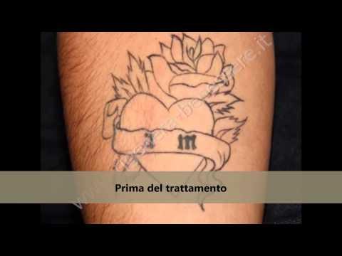 Trattamento invasivo di iperplasia prostatica benigna
