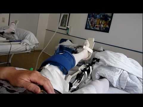 Drogen in Osteochondrose der Halswirbelsäule Foto