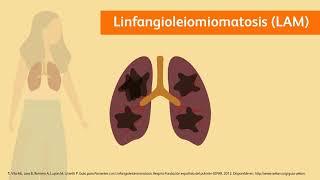 ¿Qué es la Linfangioleiomiomatosis?