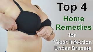 Home Remedies for Yeast Infection Under Breasts - These Work Well All the Time