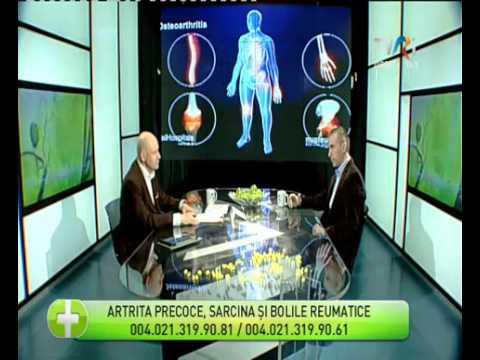 Injecții articulare și dureri de spate inferioare