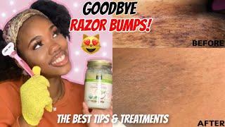 HOW TO GET RID OF RAZOR BUMPS / INGROWN HAIRS 🐱 + Preventions | Feminine Hygiene 🌸 | Naimah