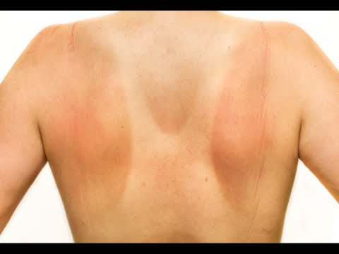 Video How to Relieve Pain from Sunburn