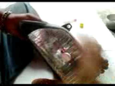 Laserowe usuwanie kości na stopie