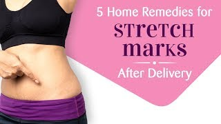 5 Effective Home Remedies for Pregnancy Stretch Marks