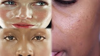 BEST Beauty Products For LARGE PORES And OILY SKIN! | Jackie Aina