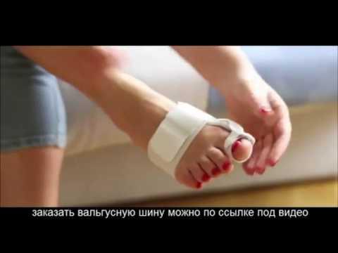 Как Можно Вывести Сухую Мозоль На Пальце Ноги [Мозоль На Большом Пальце Ноги]