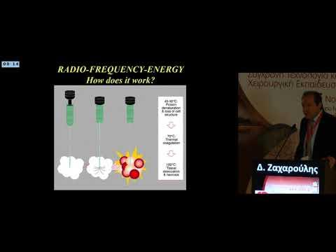 Δ Ζαχαρούλης - Αντιμετώπιση πρωτοπαθών όγκων ήπατος Ο ρόλος της τοπο περιοχικής θεραπείας