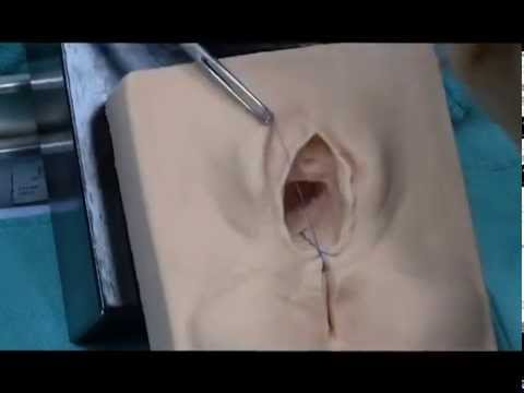 Perineal Repair Continuous Method_0001.wmv