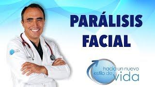 PARÁLISIS FACIAL - HACIA UN NUEVO ESTILO DE VIDA