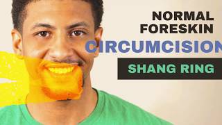 Adult Stitchless Circumcision Surgery by choice for hygiene by Shangring Dr.Kuber+919370275336