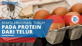 Alergi Telur, Suatu Reaksi Abnormal dari Sistem Kekebalan Tubuh terhadap Protein Telur