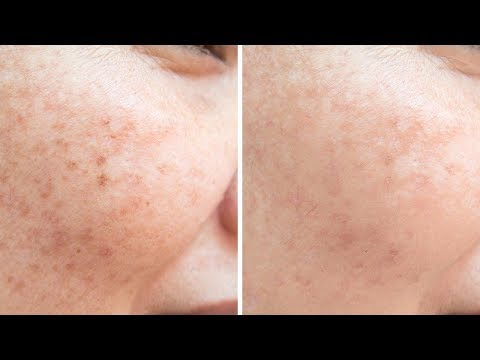Tianshi pigment spots