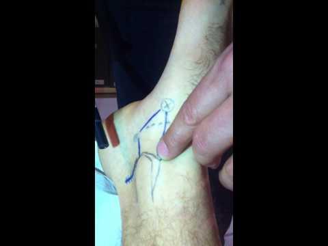 Come utilizzare grasso dorso per il trattamento delle articolazioni