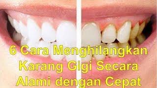 Pasta Gigi Terbaik Untuk Menghilangkan Karang Gigi Free Online