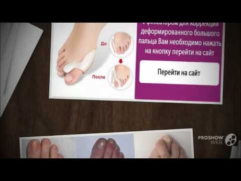 На большом пальце ноги нарост в виде мозоли и черные точки внутри