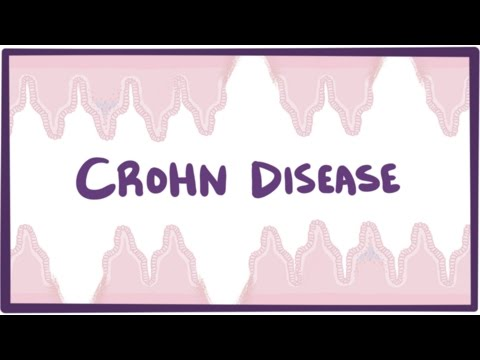 Video Crohn's disease (Crohn disease) - causes, symptoms & pathology