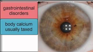 Iridology-Subtypes by Physical Integrity