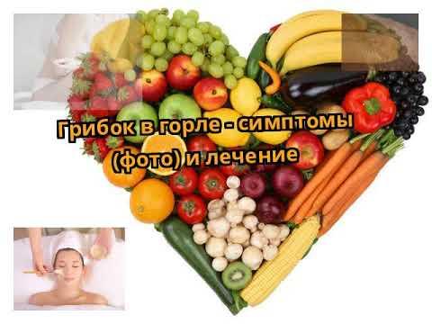 Грибок в горле - симптомы (фото) и лечение