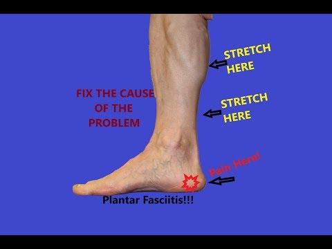 Plantar Fasciitis Treatment - Calf Stretches