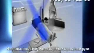 Лечение рак легких системой Кибер-Нож
