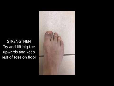 นวดเท้าเมื่อเปลี่ยนรูป