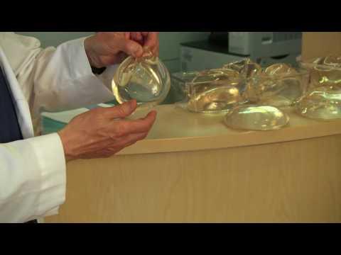 El rating de las firmas implantov de pecho