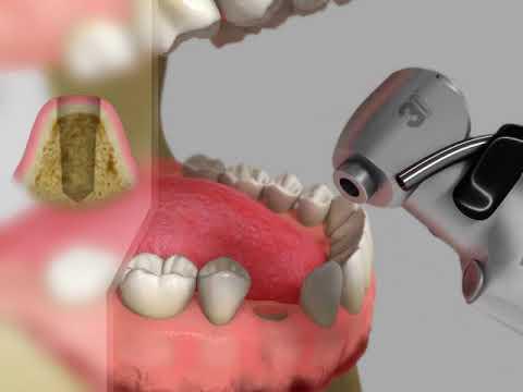 La selección de pecho implanta