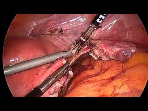 Step by Step Simple Laparoscopic Hysterectomy