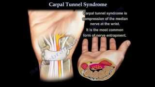 Carpal Tunnel Syndrome - Everything You Need To Know - Dr. Nabil Ebraheim