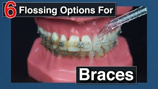 How To Floss With Braces