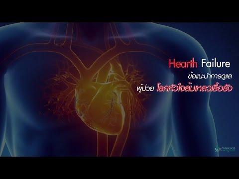 เทคโนโลยีใหม่สำหรับการรักษาเส้นเลือดขอด