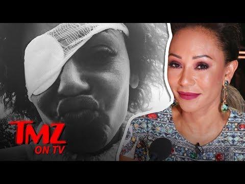 Mel B Sets Story Straight About Eye Problems | TMZ TV