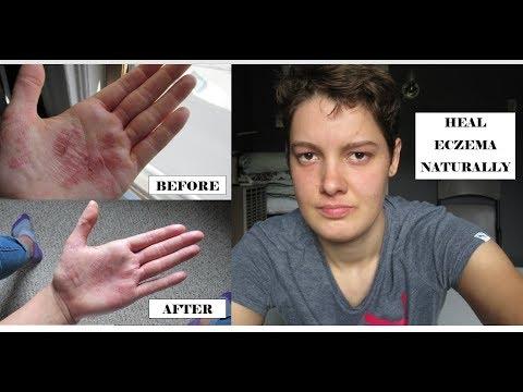 Eczema in un inguine allatto di trattamento di uomini